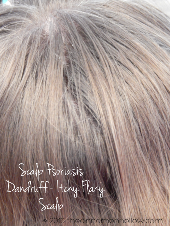 Relieve Itchy Scalp And Soothe Eczema And Psoriasis