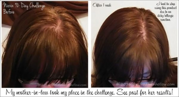 Nioxin 90 Day Hair Regrowth Challenge