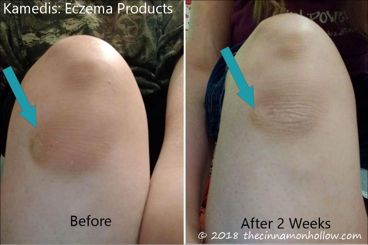 Kamedis Eczema Therapy Products