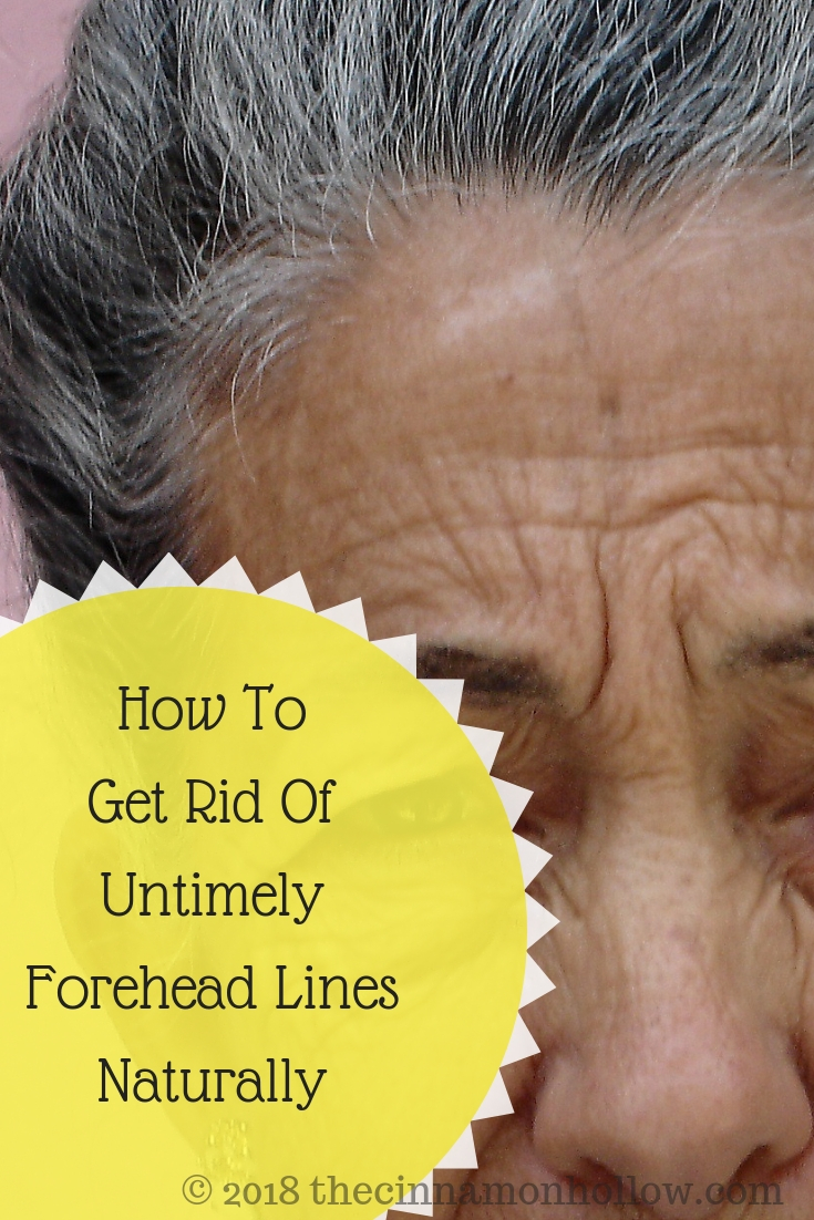 How To Get Rid Of Untimely Forehead Lines Naturally