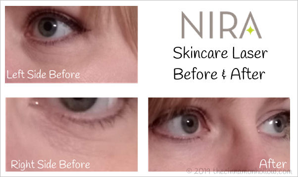 My NIRA Skincare Laser Before and After
