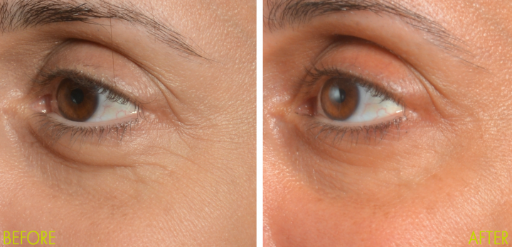 NIRA Skincare Laser Provided Before And After